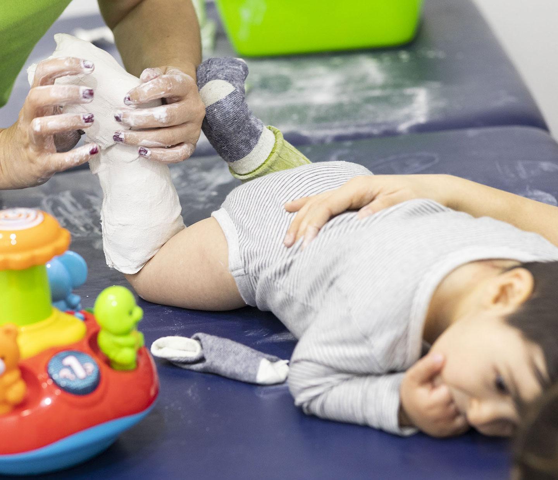 terapeuta poniendo escayola a un niño