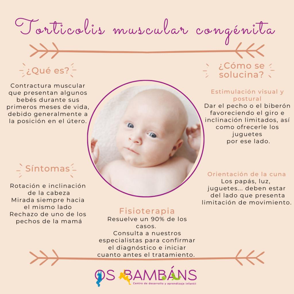 Imagen descriptiva de las caracteristicas de la torticulis muscular congenita